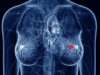 علائم سرطان سینه و تشخیص آن