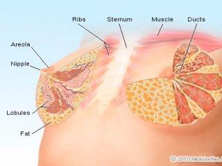انواع تومور پستان